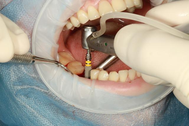 jak se vsazuje zubní implantát